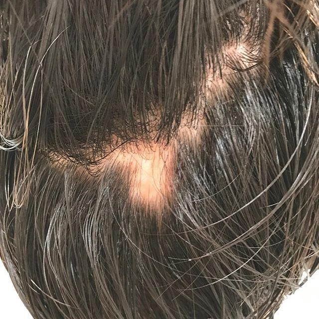 いつも来て頂くお客様 。 ストレス性の円形脱毛症いつ 誰が なっても、おかしくない。#円形脱毛症#ストレス#仕事#気持ち#都賀ルインズ31 #都賀ヘアーサロン#都賀理容室#男の美容室#顔剃りフェイシャル #メンズフェイシャル #メンズネイル#メンズ美容 #メンズブライダル#メンズアイブロウ #メンズシェービング#メンズリンパマッサージ #メンズヘア #フェードスタイル#リンパマッサージ#千葉市若葉区都賀理容室美容室#ルインズ31#千葉#都賀#四街道